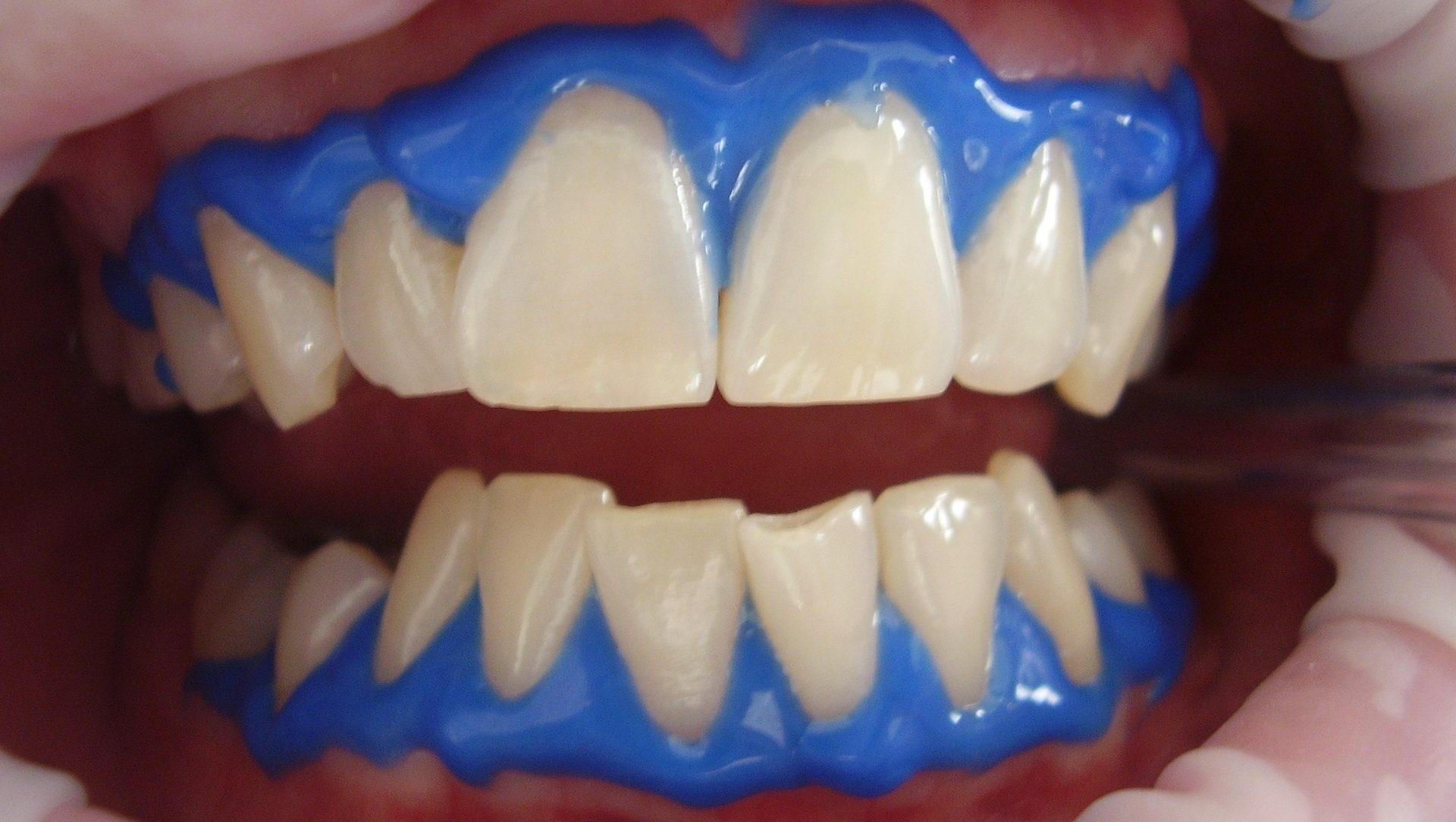 Tanden bleken2-1