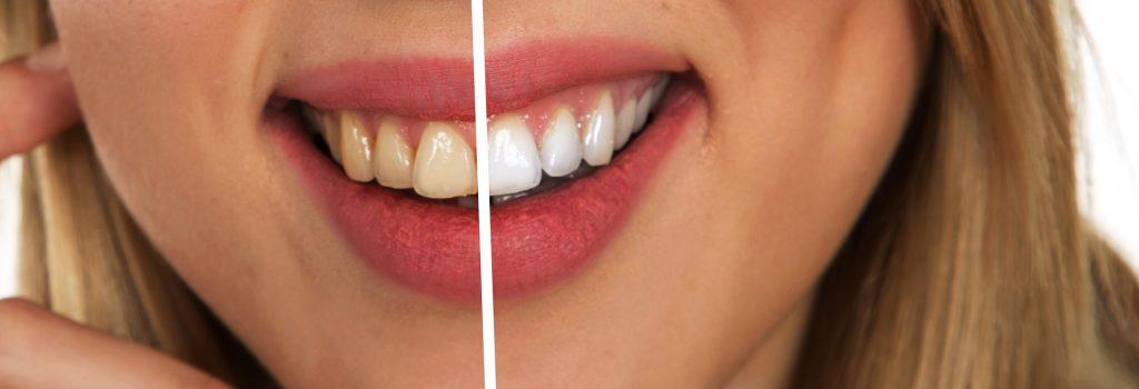 Tanden bleken2