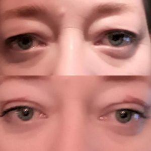 Plasma-Lift-ooglid-1