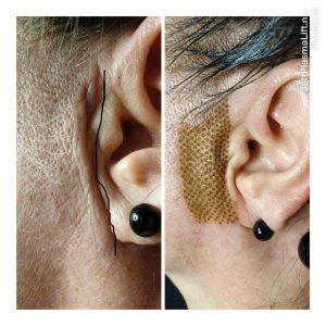 Plasma-Lift-oor-1